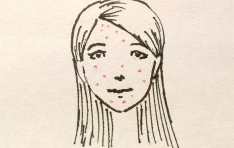 A Beneath-the-Skin Perspective About What Causes Acne