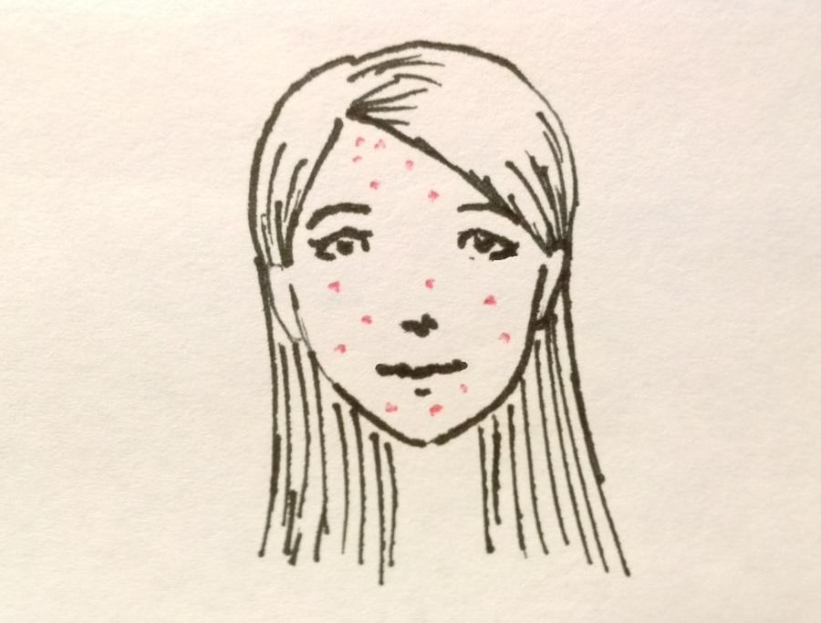 A+Beneath-the-Skin+Perspective+About+What+Causes+Acne
